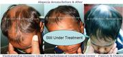 Alopecia Areata Treatment in Pondicherry