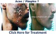 Pimples - Acne Treatment in Pondicherry